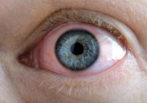 Trockene Augen Augenarzt Frankfurt